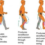 The use of Function Electrical Stimulation (FES) in neurological rehabilitation.