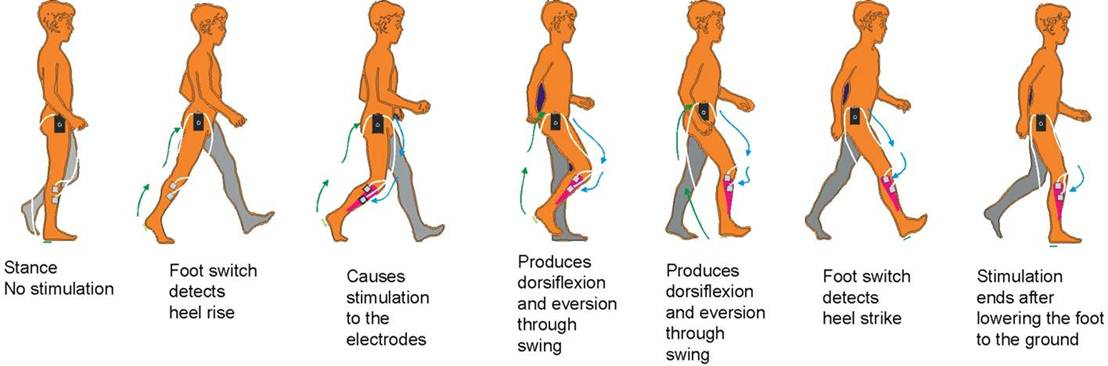 The Use Of Function Electrical Stimulation Fes In